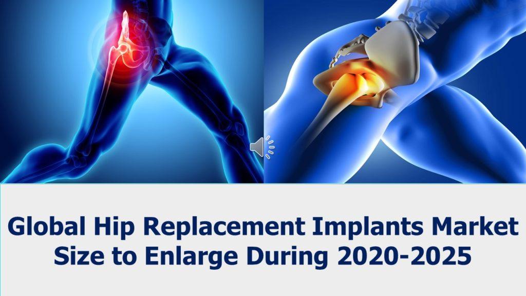 HIP_Replacement_Implants_Market